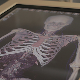 3-D Anatomy Simulators Will Add to Cadaver Lab Experience